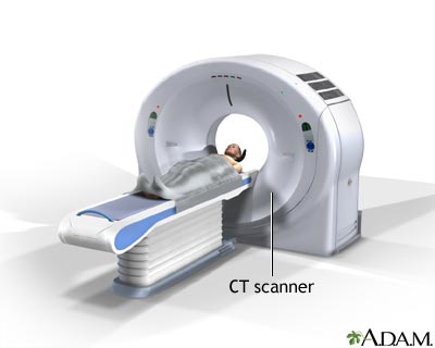 image ct scan
