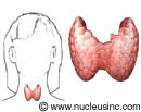 Picture of the thyroid gland and where it is in the body