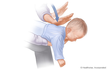 Picture of choking rescue procedure (Heimlich maneuver) with baby face down