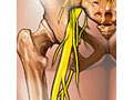 Picture of sciatic nerve and its location in the body