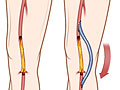 Picture of femoropopliteal (fem-pop) bypass