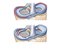 Picture of meniscus healing zones and meniscus tears
