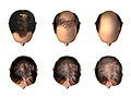 Picture of examples of male- and female-pattern hair loss