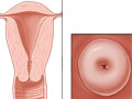 Picture of the cervix and its location in the body
