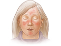 Picture of a rosacea rash