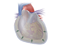 Picture of a normal heart and pericardial effusion
